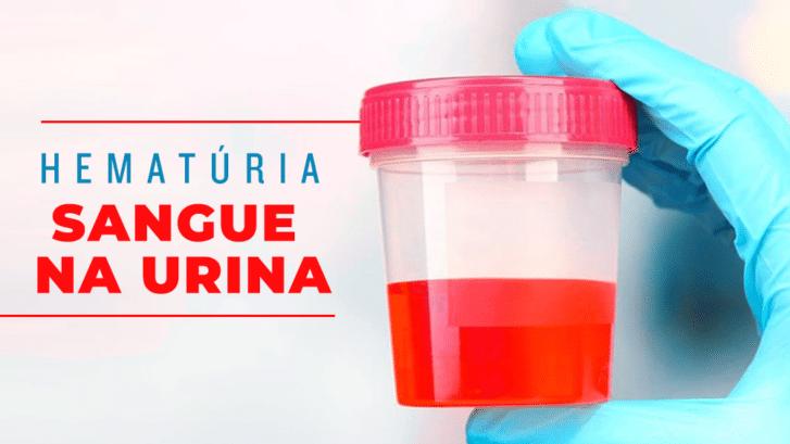 Sangue na urina – Hematúria